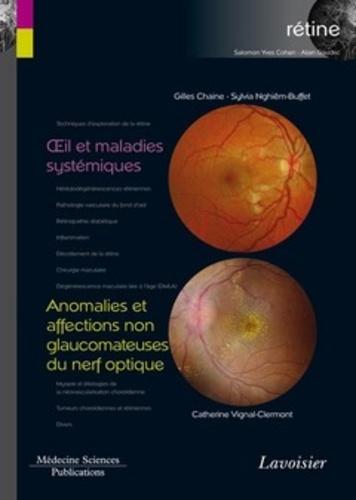 Rétine. Volume 5, Oeil et maladies systémiques ; Anomalies et affections non glaucomateuses du nerf optique