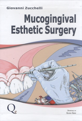 Giovanni Zucchelli - Mucogingival Esthetic Surgery.