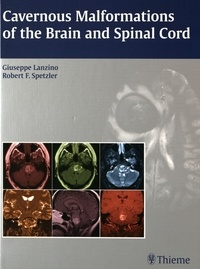 Cavernous Malformations of the Brain and Spinal Cord.pdf