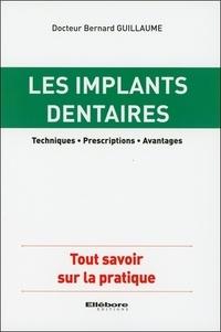 Guillaume Bernard - Les implants dentaires.