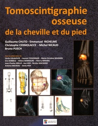 Guillaume Chuto et Emmanuel Richelme - Tomoscintigraphie osseuse de la cheville et du pied.