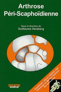 Arthrose Péri-Scaphoïdienne.pdf