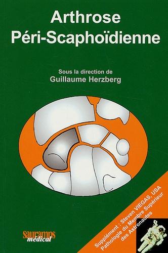 Arthrose Scapho-trapézo-trapézoïdienne
