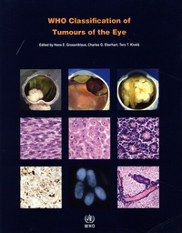 H. E. Grossniklaus et C. Eberhart - Who Classification of Tumours of the Eye.