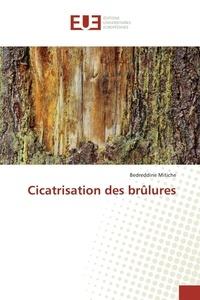Cicatrisation des brûlures.pdf