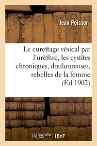 Poisson - Le curettage vésical par l'urèthre : pour cystites chroniques, douloureuses, rebelles chez la femme.