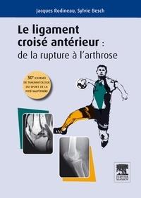 Sylvie Besch et Jacques Rodineau - Le ligament croisé antérieur : De la rupture à l'arthrose - 30e journée de traumatologie du sport et de la Pitié-Salpêtrière.