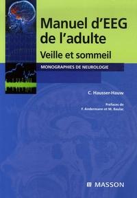 Chantal Hausser-Hauw - Manuel d'électroencéphalogramme de l'adulte.
