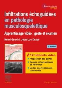 Henri Guerini et Jean-Luc Drapé - Infiltrations échoguidées en pathologie musculosquelettique - Apprentissage vidéo : geste et examen.