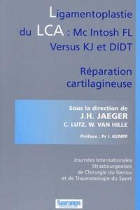 Ligamentoplastie du LCA : Mc Intosh FL versus KJ et DIDT. Réparation cartilagineuse.pdf