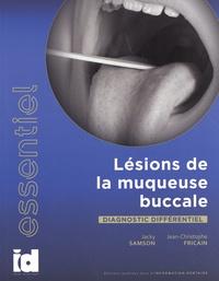 Jacky Samson et Jean-Christophe Fricain - Lésions de la muqueuse buccale - Diagnostic différentiel.