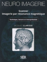 Jacques Clarisse - Neuro imagerie - Scanner - Imagerie par résonance magnétique - Technique, lecture et interprétation.