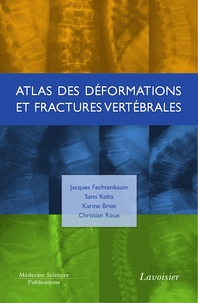 Jacques Fechtenbaum et Sami Kolta - Atlas des déformations et fractures vertébrales.