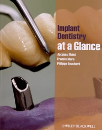 Accentsonline.fr Implant Dentistry at a Glance Image