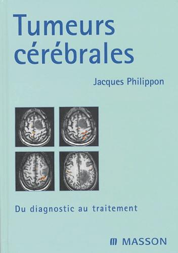 Jacques Philippon - Tumeurs cérébrales - Du diagnostic au traitement.