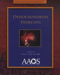 James-L Carey - Osteochondritis Dissecans.