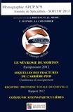 Jean Brilhault et Jean-Louis Besse - Journée de spécialités SOFCOT 2013 - Le névrome de Morton ; Séquelles des fractures de l'arrière-pied ; Registre prothèse totale de cheville ; Communications particulières.