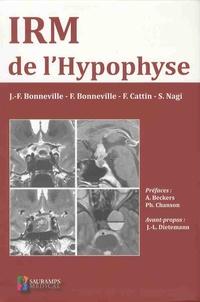 Jean-François Bonneville et Fabrice Bonneville - IRM de l'hypophyse.