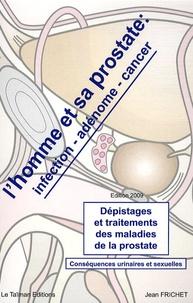 Jean Frichet - L'homme et sa prostate : infection, adénome, cancer - Dépistages et traitements des maladies de la prostate Conséquences urinaires et sexuelles.
