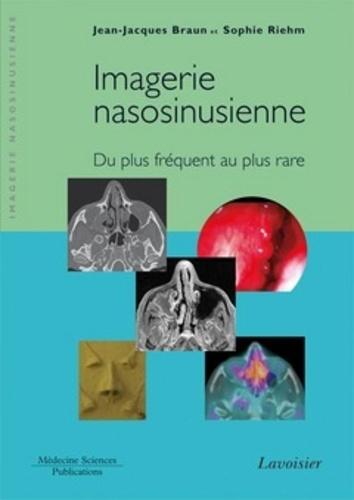 Jean-Jacques Braun et Sophie Riehm - Imagerie nasosinusienne - Du plus fréquent au plus rare.
