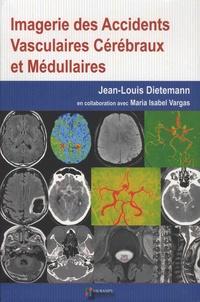 Imagerie des accidents vasculaires cérébraux et médullaires - Jean-louis Dieteman | Showmesound.org