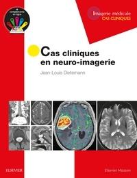 Jean-Louis Dietemann - Cas cliniques en neuro-imagerie.