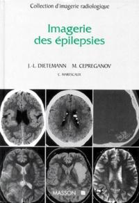 Jean-Louis Dietemann et  Cepreganov - Imagerie des épilepsies.