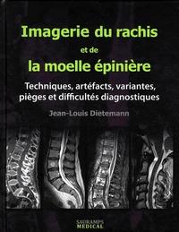 Jean-Louis Dietemann - Imagerie du rachis et de la moelle épinière - Techniques, artéfacts, variantes, pièges et difficultés diagnostiques.