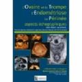 Jean-Marc Levaillant et Perrine Capmas - L'Ovaire et la Trompe, l'Endométriose, le Périnée - Aspects échographiques.