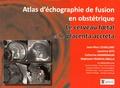 Jean-Marc Levaillant et Laurence Gitz - Le cerveau foetal et le placenta accreta - Atlas d'échographie de fusion en gynécologie.