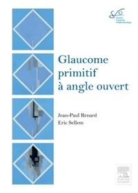 Deedr.fr Glaucome primitif à angle ouvert - Rapport 2014 Image