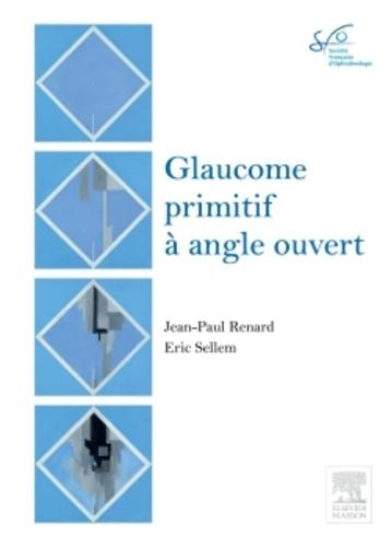 Jean-Paul Renard et Eric Sellem - Glaucome primitif à angle ouvert - Rapport 2014.