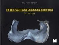 Jean-Pierre Borgers - La prothèse piézographique en images.