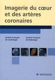 Jean-Pierre Laissy et Pascal Guéret - Imagerie du coeur et des artères coronaires.