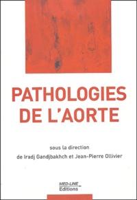 Galabria.be Pathologies de l'aorte Image