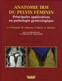 Jean-Pierre Rouanet de Lavit et M Filhastre - Anatomie IRM du pelvis féminin - Principales applications en pathologie gynécologique.