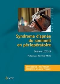 Jérôme Liotier - Syndrome d'apnée du sommeil en périopératoire.