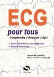 Jérôme Molinaro - ECG pour tous - Comprendre, analyser, agir.