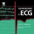 John-R Hampton - 150 problèmes d'ECG.