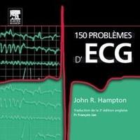 Openwetlab.it 150 problèmes d'ECG Image