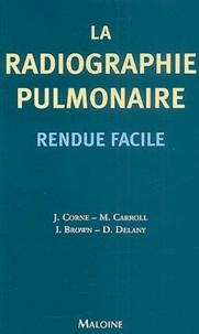 Jonathan Corne et Mary Carroll - La radiographie pulmonaire rendue facile.