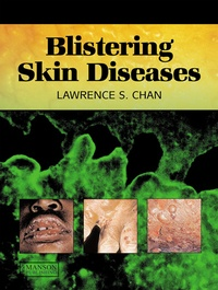 Lawrence S Chan - Blistering Skin Diseases.