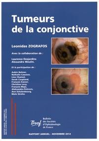 Tumeurs de la conjonctive.pdf