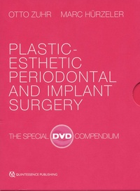 Otto Zuhr et Marc Hürzeler - Plastic-Esthetic Periodontal and Implant Surgery - The special DVD compendium. 4 DVD