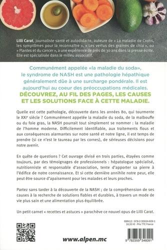 Le syndrome NASH. La maladie du soda, du foie gras