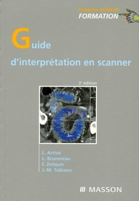 Lionel Arrivé et Laurent Brunereau - Guide d'interprétation en scanner.