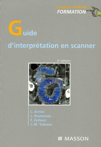 Lionel Arrivé et Laurent Brunereau - Guide d'interprétation en scanner.