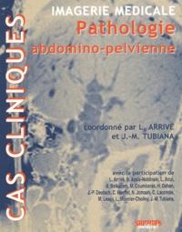 Lionel Arrivé et Jean-Michel Tubiana - Imagerie médicale - Pathologie abdomino-pelvienne.