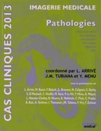 Lionel Arrivé et Jean-Michel Tubiana - Imagerie médicale - Pathologies ostéoarticulaire, neurologique, sénologique, thoracique, digestive, ORL.