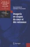 Louis Boyer et Pascal Guéret - Imagerie en coupes du coeur et des vaisseaux - Compte rendu des 5e rencontres de la SFC et de la SFR : Paris, 14 et 15 février 2013.